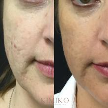 microneedling and prp results tulsa