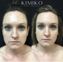 before and after intense pulsed light