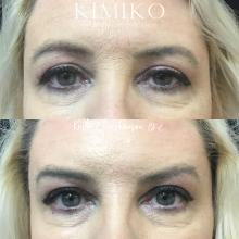 woman brow lift botox