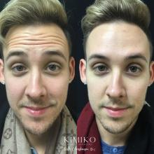 photo of botox results for men