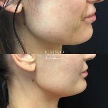 masseter injections tulsa jawline slimming
