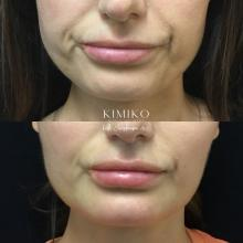 botox in DAO tulsa botox downturn of mouth