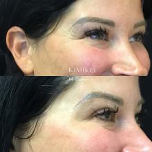 botox crows feet treatment xeomin tulsa before and after