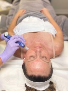photo of woman getting microneedling treatment