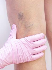 photo of legs with spider veins